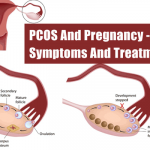 PCOS And Why Getting Pregnant With It Can Be Difficult
