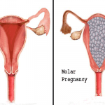 Difficulty Getting Pregnant After Molar Pregnancy